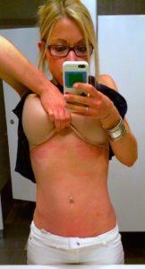 GiGi's stomach full of hives!