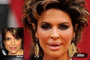 celebrity-plastic-surgery